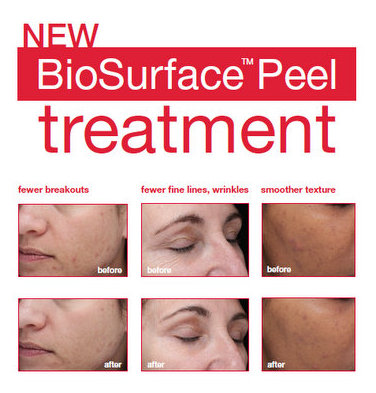 dermalogica-biosurface-peel-facial-treatment-before-after