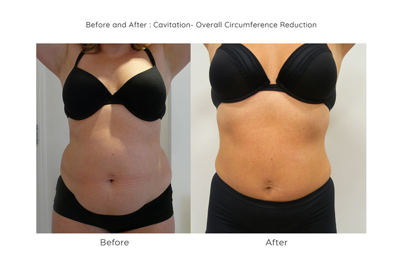3d cavitation at synergy beauty salon in studley