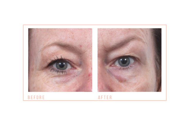 CACI Treatments at Synergy Beauty Salon in Studley, Redditch
