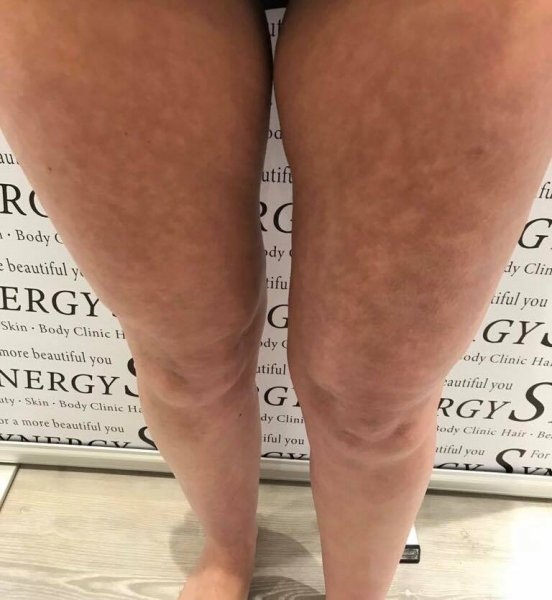 3D Lipo at Synergy Hair & Beauty Salon in Studley, Warwickshire
